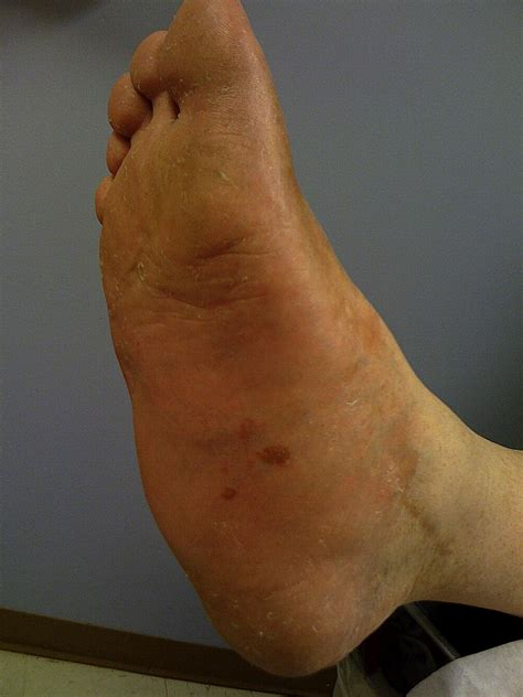 Underlying Synovial Sarcoma in a Patient with a History of