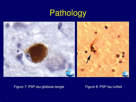 PPT - Progressive Supranuclear Palsy PowerPoint
