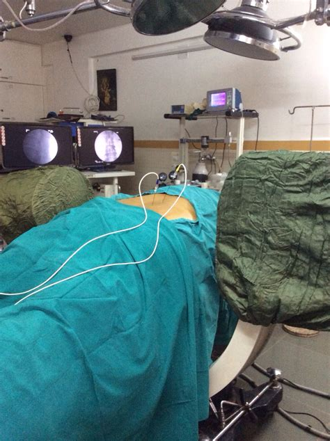 Radiofrequency Ablation of Median Branch