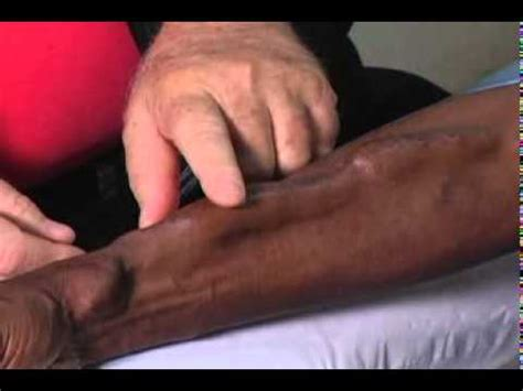 Fistula First Healthcare Professionals Where do I start if